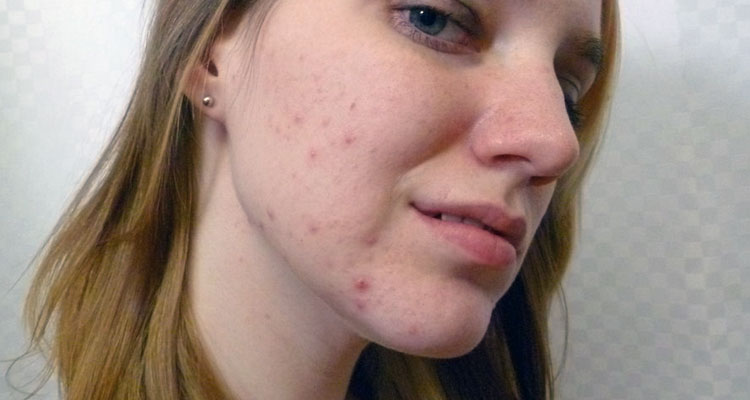 Dating someone with acne scars