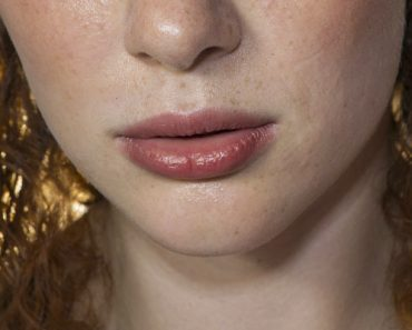 castor oil on lips results